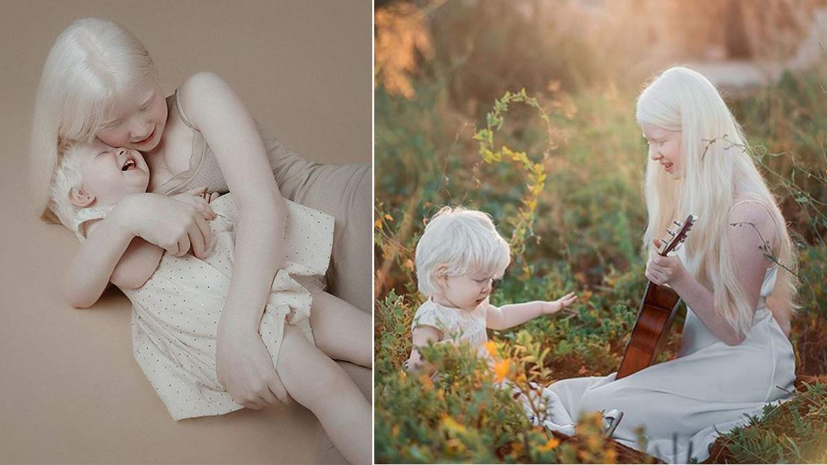 Сестри із альбінізмом зачарували світ своєю красою: захопливі фото, які вразять кожного