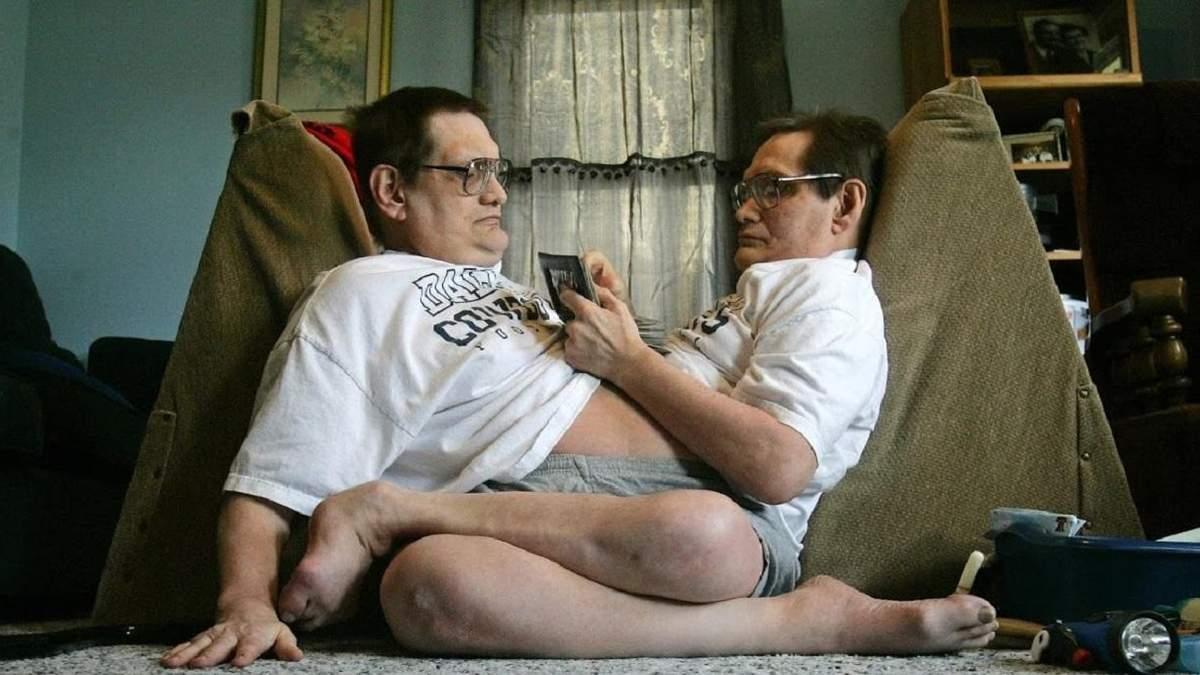 Умерли самые старые сиамские близнецы Ронни и Донни Гейлоны