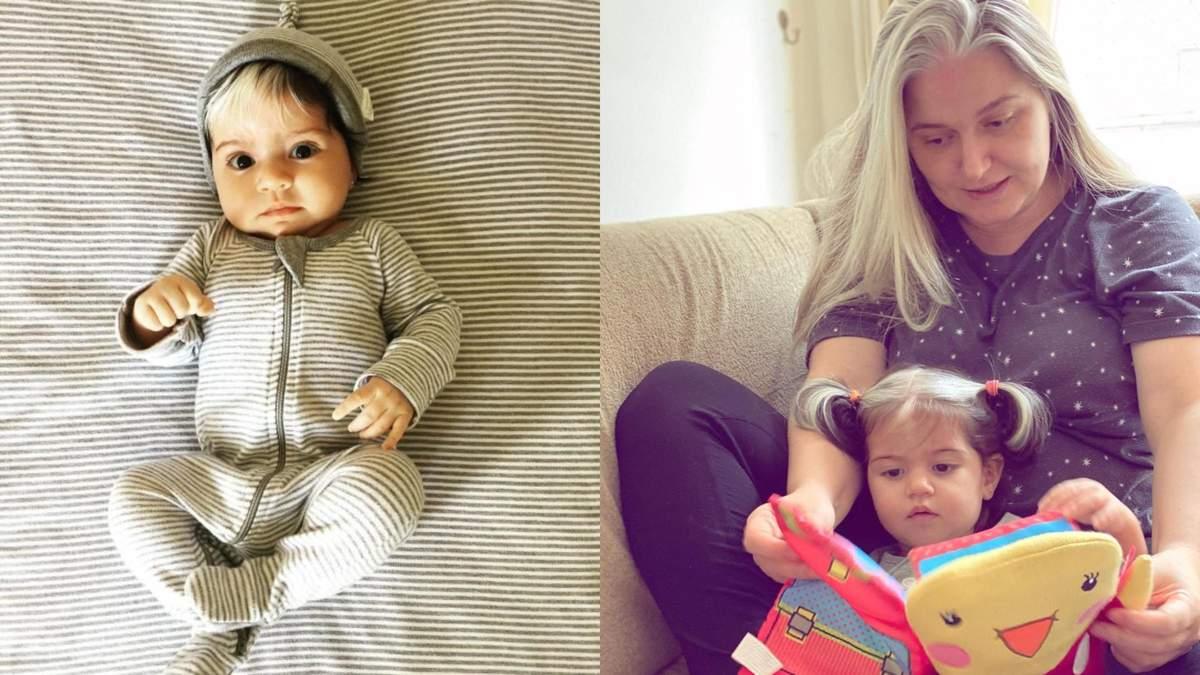 Дівчинка народилася з сивим волоссям: фото