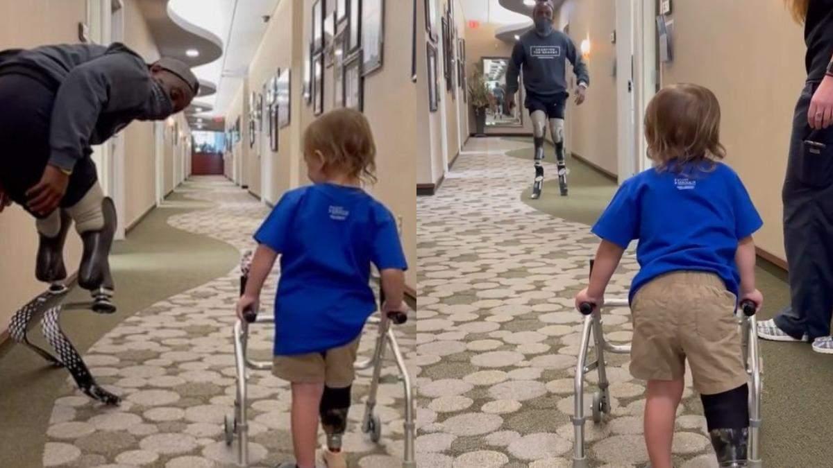 Первые шаги 2-летней девочки с протезом ноги: видео