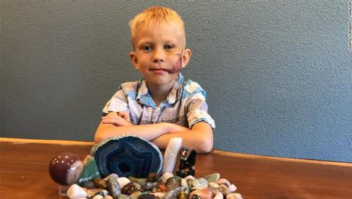 6-летний мальчик спас маленькую сестру от нападения собаки: детали и жуткие фото