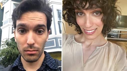 Чоловік змінив стать через 14 місяців після прийому гормонів: шокуючі фото до та після